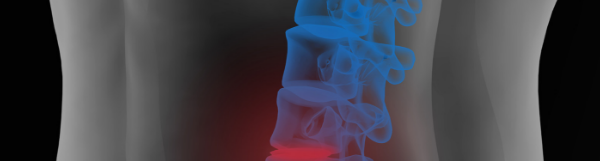 Degenerative Disc Disease Correlation To Pain Doesn't Matter As Much As You Think